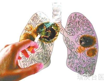 案例 | 肺癌質子治療 生命新希望