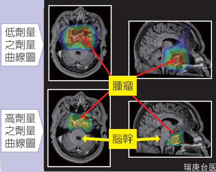 臺灣長庚醫院案例 | 腦瘤的強度調控質子治療